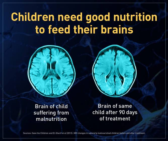 Clemente_Gates Foundation Brains